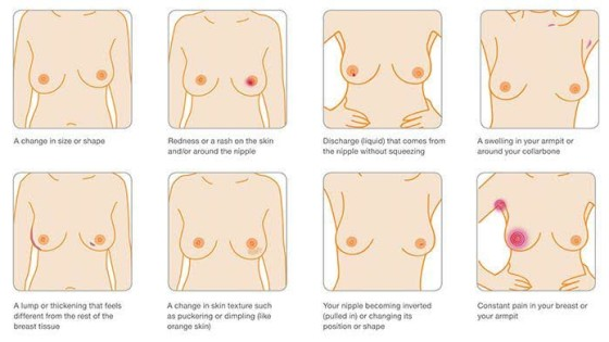 Breast Cancer Awareness Month FYI
